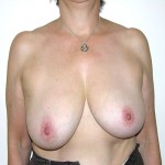 Breast Reduction 05 Before Photo - 5