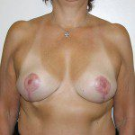 Breast Reduction 05 After Photo - 5