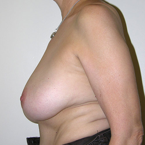 Breast Reduction 05 Before Photo