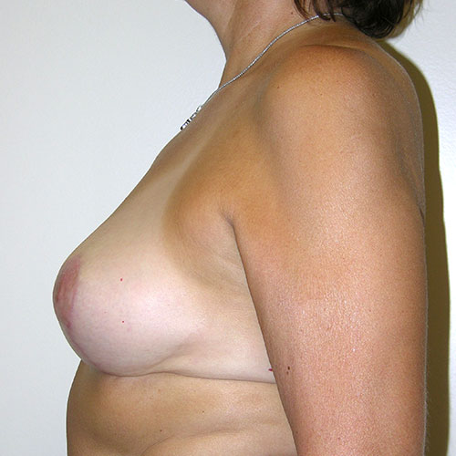 Breast Reduction 05 After Photo