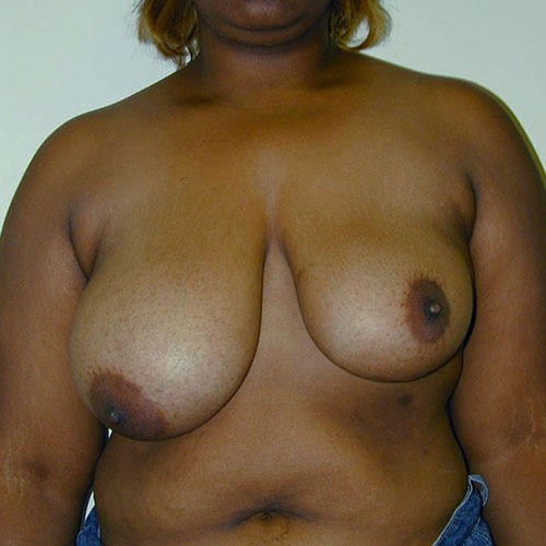 Breast Reduction 06 Before Photo