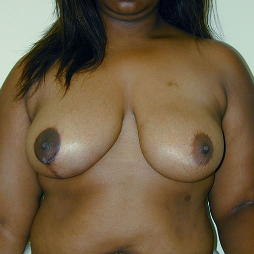 Breast Reduction 06 After Photo