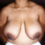 Breast Reduction 07 Before Photo - 7