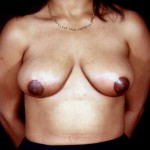 Breast Reduction 07 After Photo - 7