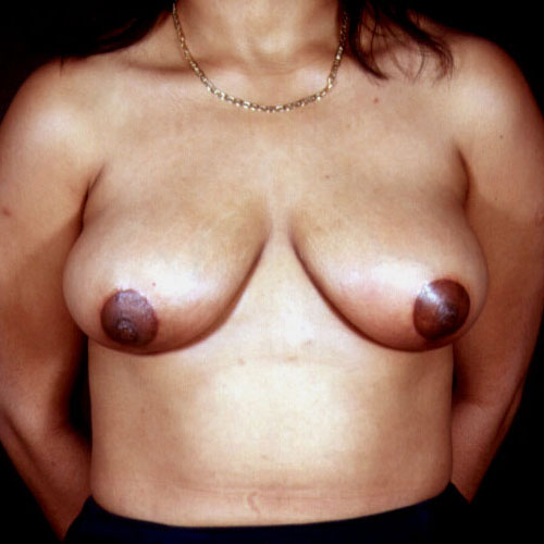 Breast Reduction 07 After Photo