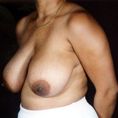 Breast Reduction 07 Before Photo