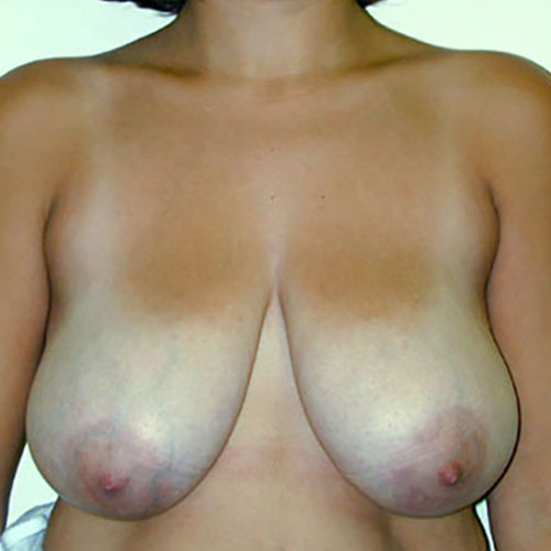 Breast Reduction 08 Before Photo