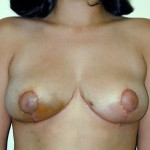 Breast Reduction 08 After Photo - 8