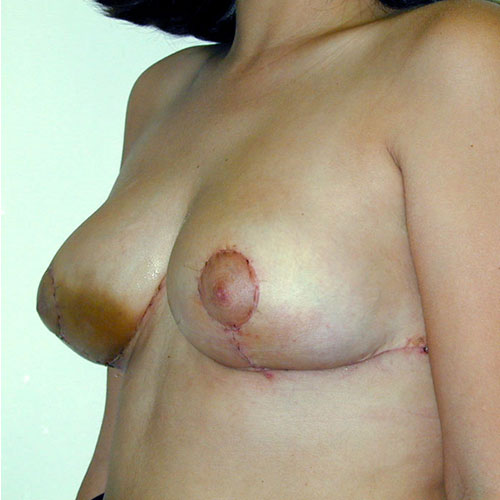 Breast Reduction 08 After Photo