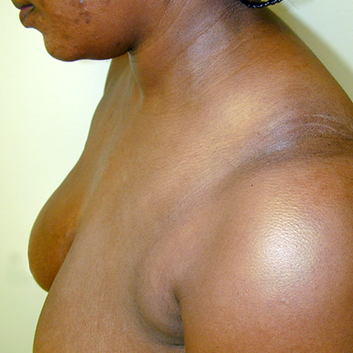 Breast Reduction 09 Before Photo
