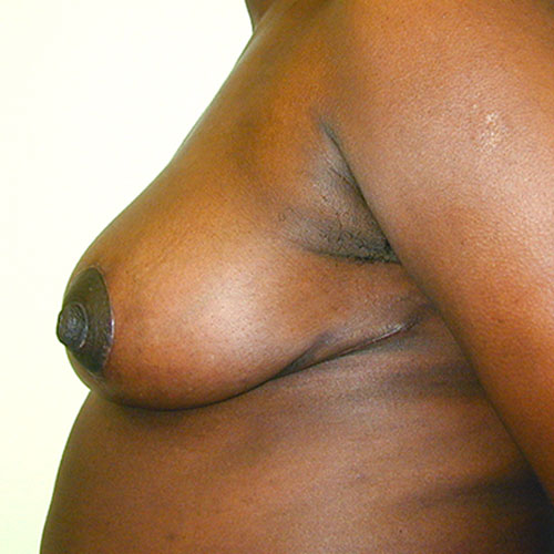 Breast Reduction 09 After Photo