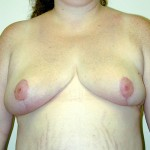 Breast Reduction 10 After Photo - 10