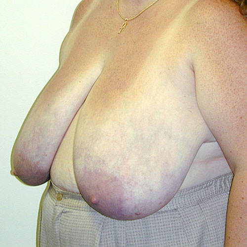 Breast Reduction 10 Before Photo