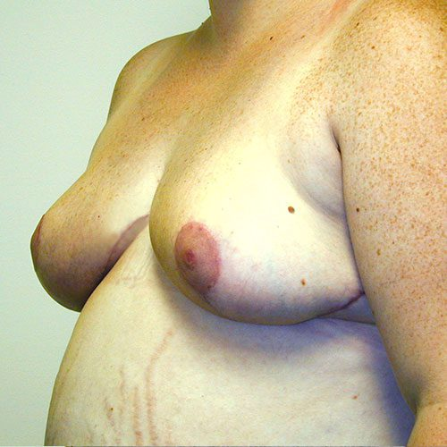 Breast Reduction 10 After Photo