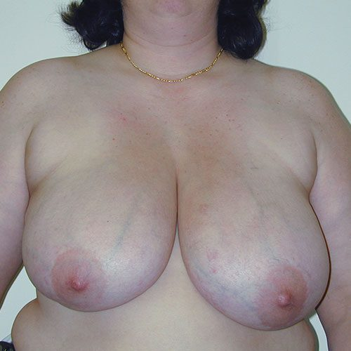 Breast Reduction 11 Before Photo