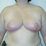 Breast Reduction 11 After Photo - 11