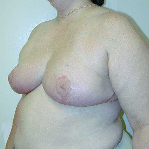 Breast Reduction 11 After Photo