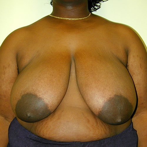 Breast Reduction 12 Before Photo