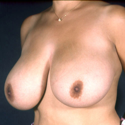 Breast Reduction 13 Before Photo