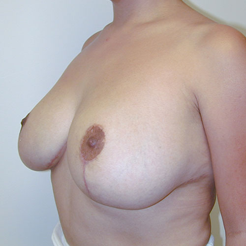 Breast Reduction 13 After Photo