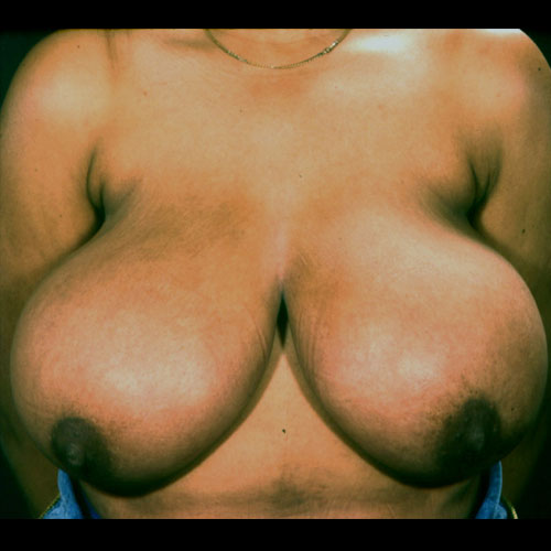 Breast Reduction 14 Before Photo