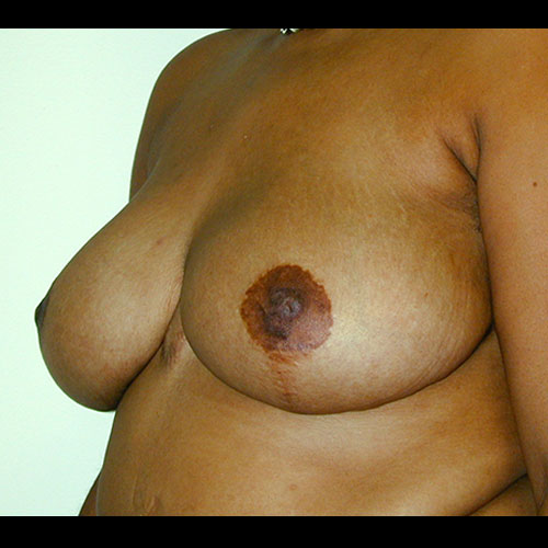 Breast Reduction 14 After Photo