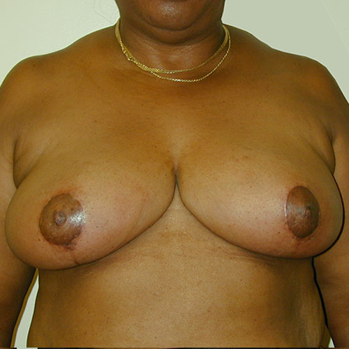 Breast Reduction 15 After Photo
