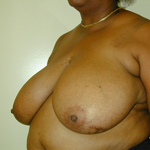 Breast Reduction 15 Before Photo
