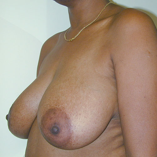 Breast Reduction 17 Before Photo
