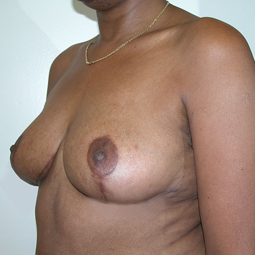 Breast Reduction 17 After Photo