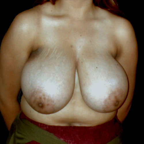 Breast Reduction 18 Before Photo