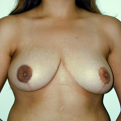 Breast Reduction 18 After Photo
