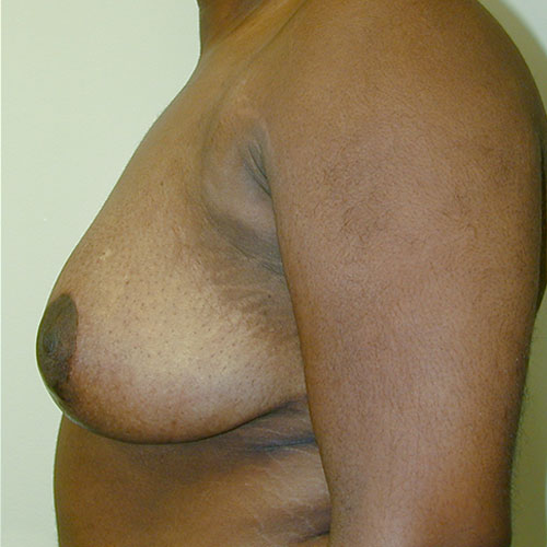 Breast Reduction 19 After Photo
