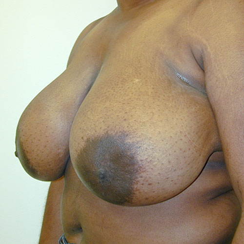 Breast Reduction 19 Before Photo