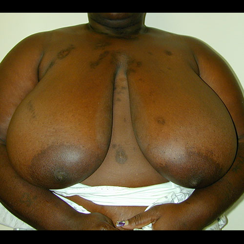 Breast Reduction 20 Before Photo