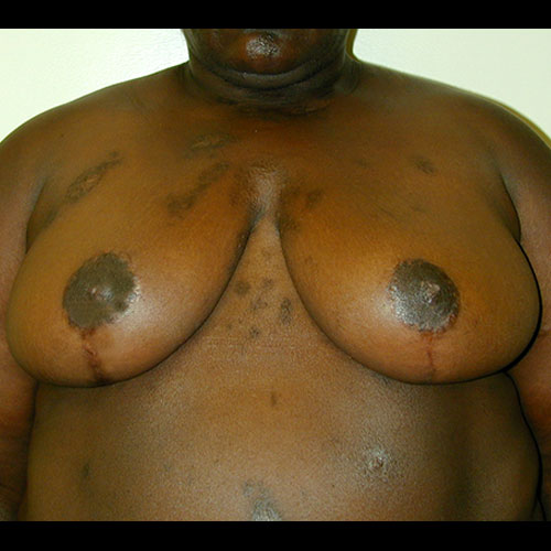 Breast Reduction 20 After Photo