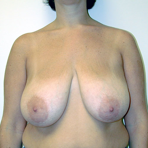 Breast Reduction 21 Before Photo