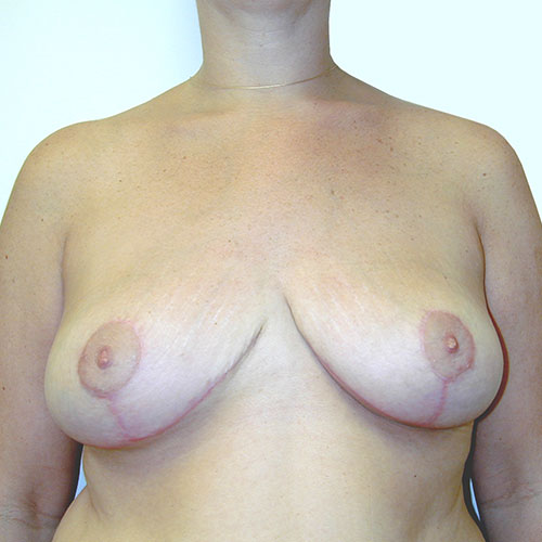 Breast Reduction 21 After Photo
