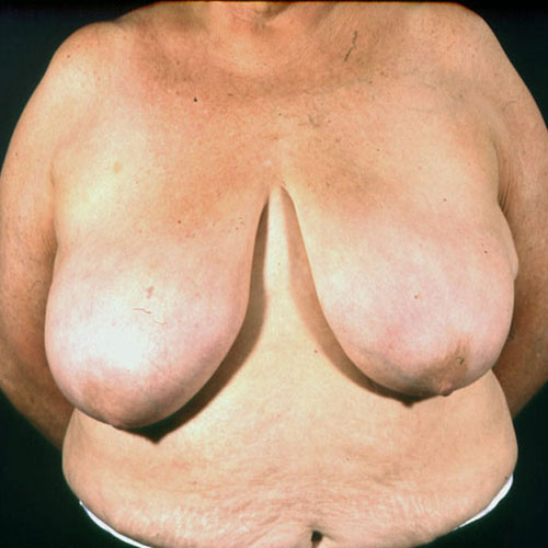 Breast Reduction 22 Before Photo
