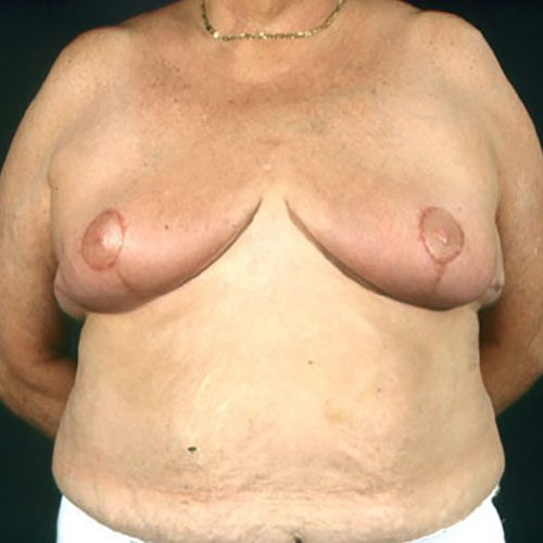 Breast Reduction 22 After Photo
