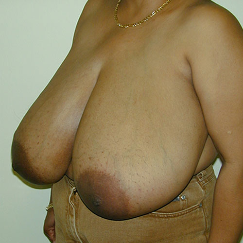 Breast Reduction 23 Before Photo