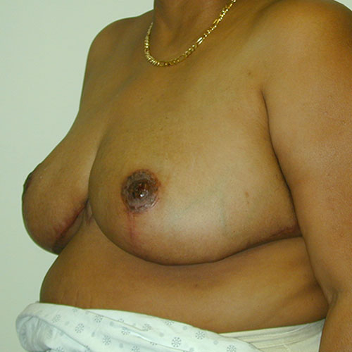 Breast Reduction 23 After Photo