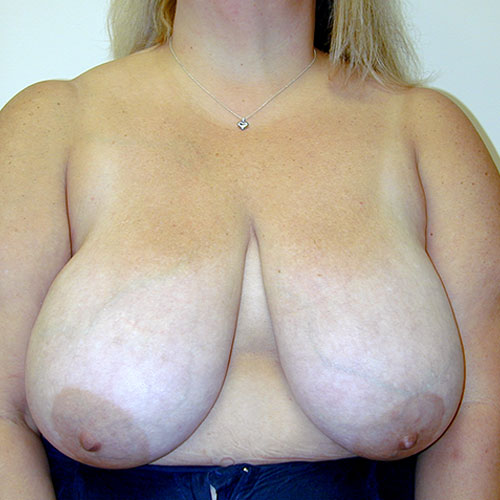 Breast Reduction 24 Before Photo