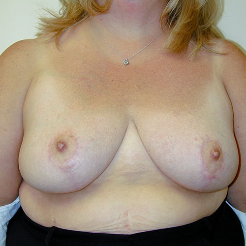 Breast Reduction 24 After Photo