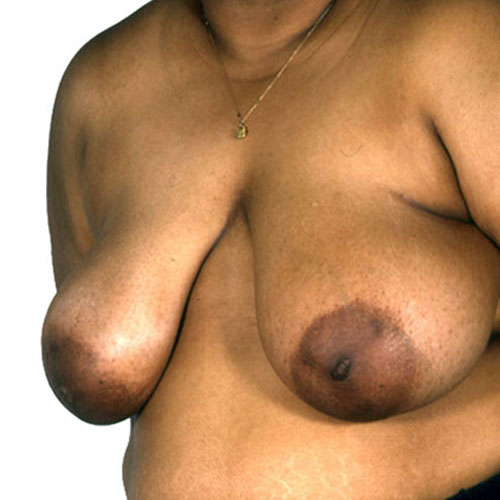 Breast Reduction 25 Before Photo
