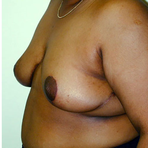 Breast Reduction 25 After Photo