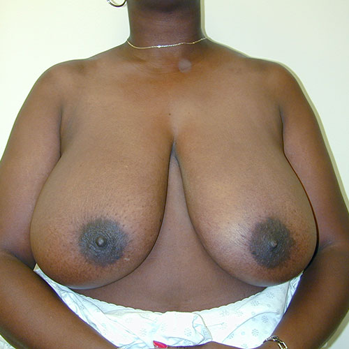 Breast Reduction 26 Before Photo