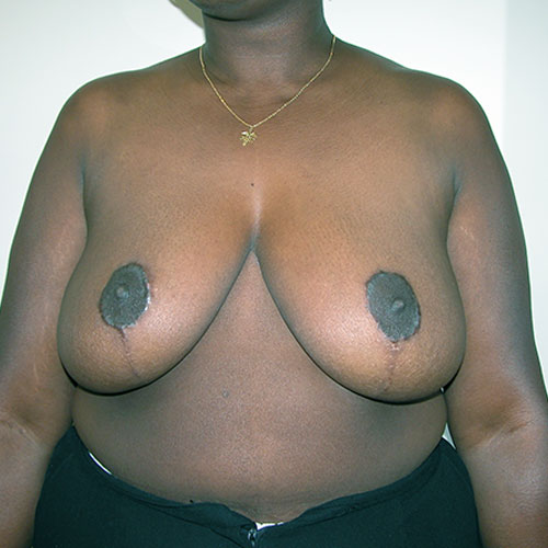 Breast Reduction 26 After Photo
