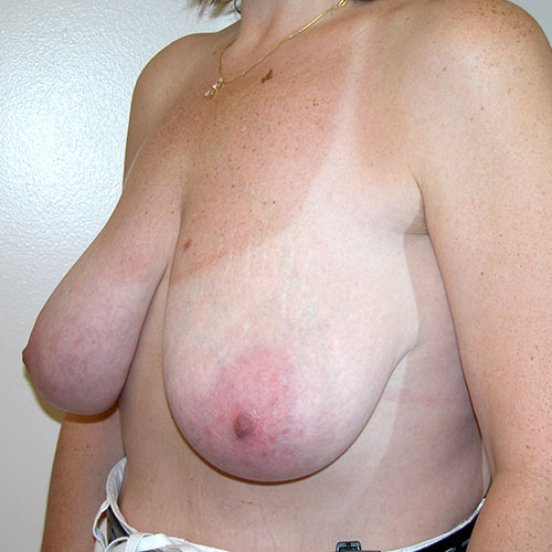 Breast Reduction 27 Before Photo
