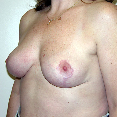 Breast Reduction 27 After Photo